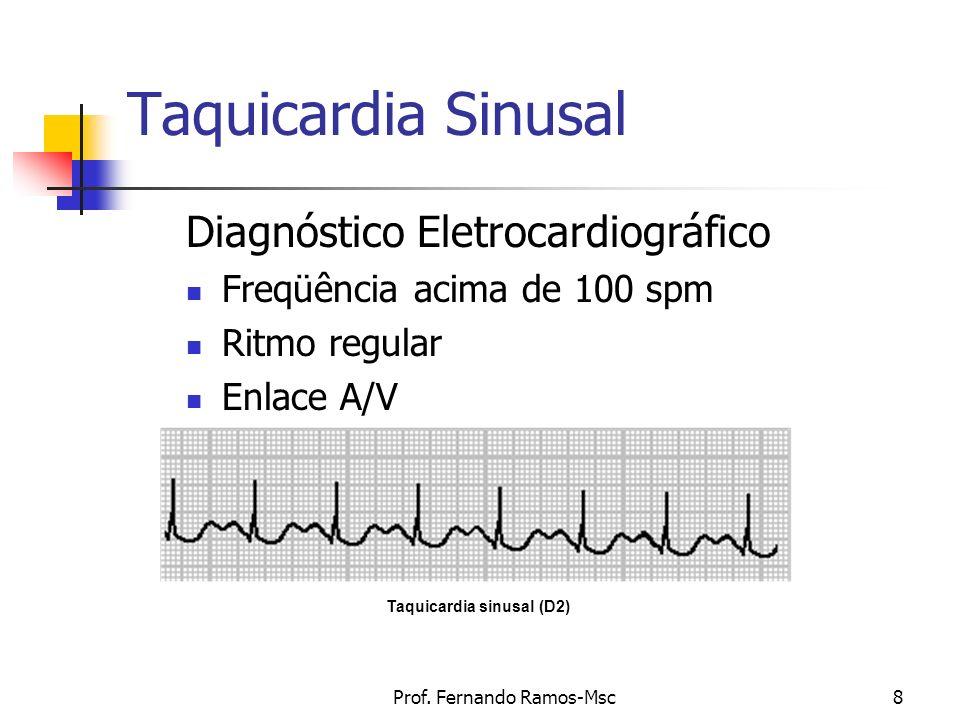 Prof. Fernando Ramos-Msc8 Taquicardia Sinusal Diagnóstico Eletrocardiográfico Freqüência acima de 100 spm Ritmo regular Enlace A/V Taquicardia sinusal