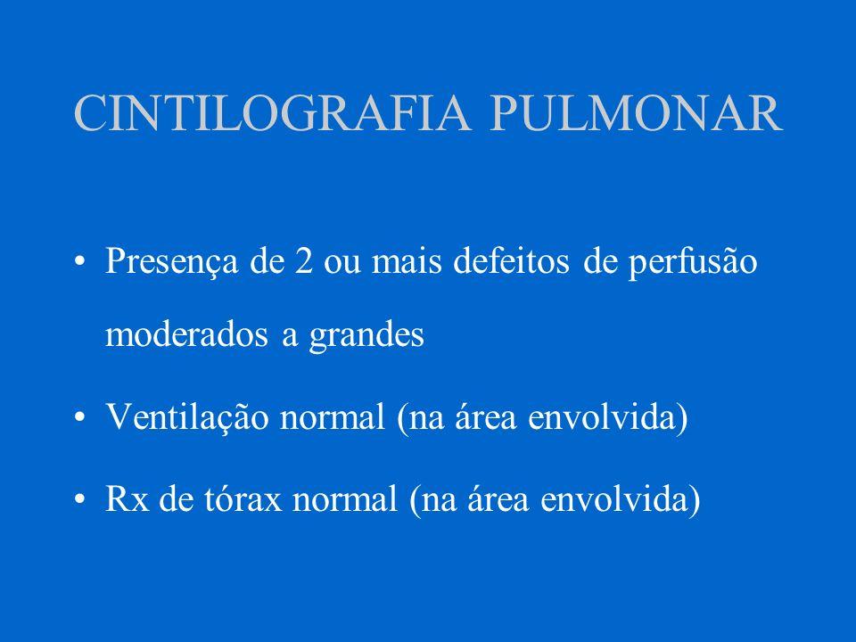 CINTILOGRAFIA PULMONAR Presença de 2 ou mais defeitos de perfusão moderados a grandes Ventilação normal (na área envolvida) Rx de tórax normal (na áre