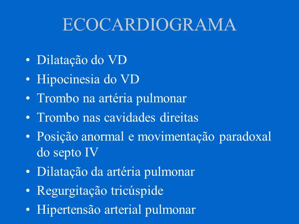 ECOCARDIOGRAMA Dilatação do VD Hipocinesia do VD Trombo na artéria pulmonar Trombo nas cavidades direitas Posição anormal e movimentação paradoxal do