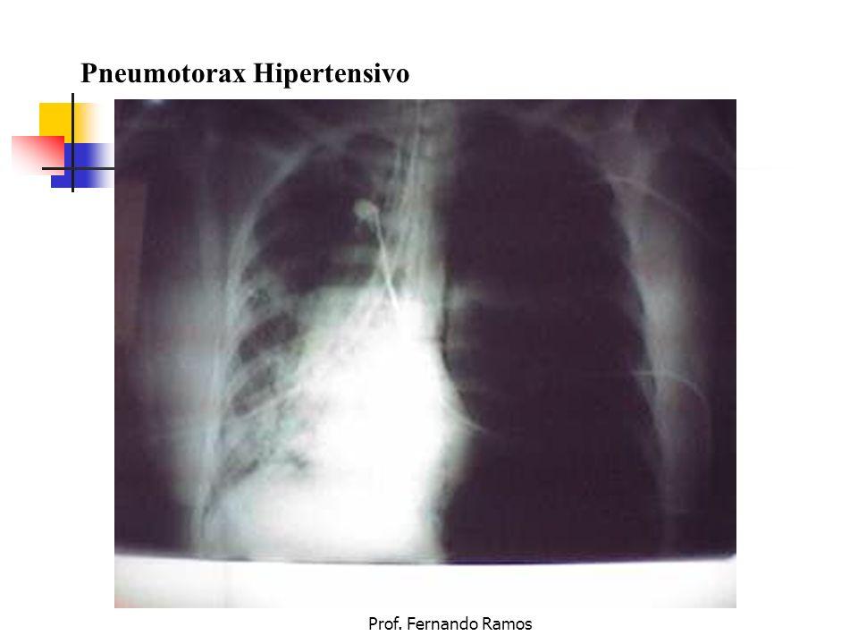 Prof. Fernando Ramos Pneumotorax Hipertensivo