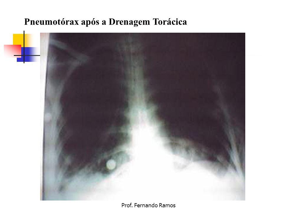 Prof. Fernando Ramos Pneumotórax após a Drenagem Torácica