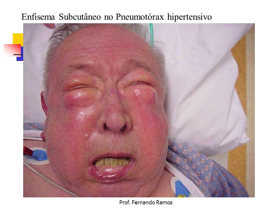Prof. Fernando Ramos Enfisema Subcutâneo no Pneumotórax hipertensivo