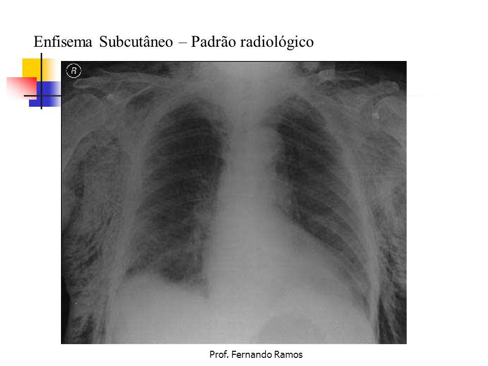 Prof. Fernando Ramos Enfisema Subcutâneo – Padrão radiológico