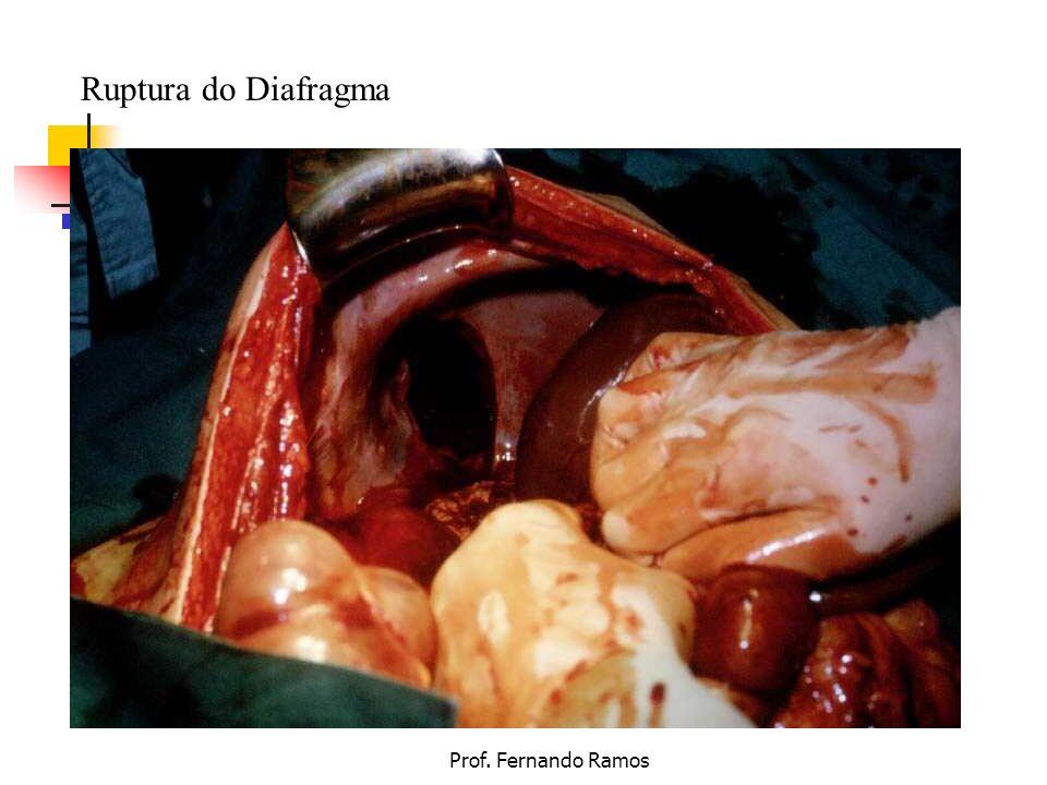 Prof. Fernando Ramos Ruptura do Diafragma