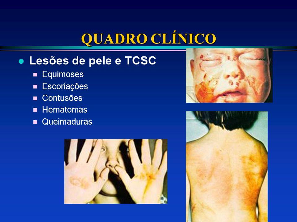 QUADRO CLÍNICO l Lesões de pele e TCSC n Equimoses n Escoriações n Contusões n Hematomas n Queimaduras
