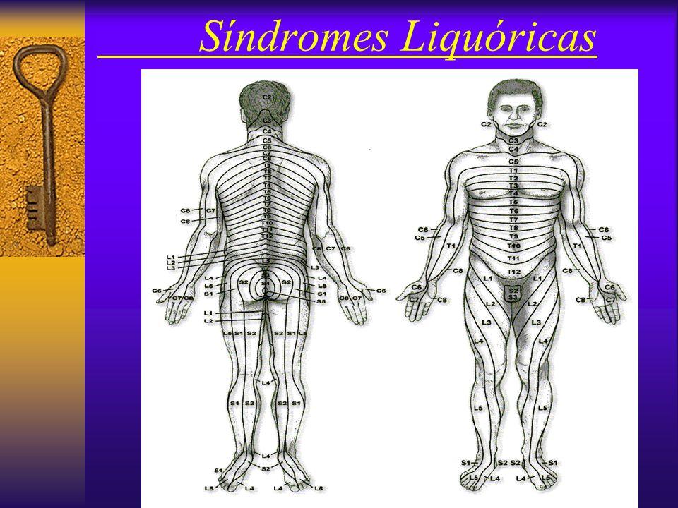 Síndromes Liquóricas IV – Método Método : –Local : plano entre as protuberâncias ilíacas póstero-superiores passa ~ L4 Antissepsia: –Não é procediment