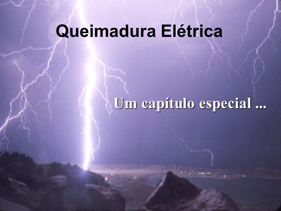 Queimadura Elétrica Um capítulo especial...