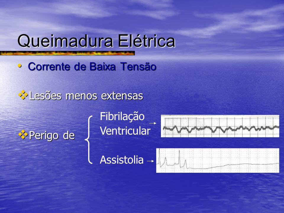 Queimadura Elétrica Corrente de Baixa Tensão Corrente de Baixa Tensão Lesões menos extensas Lesões menos extensas Perigo de Perigo de Fibrilação Ventr