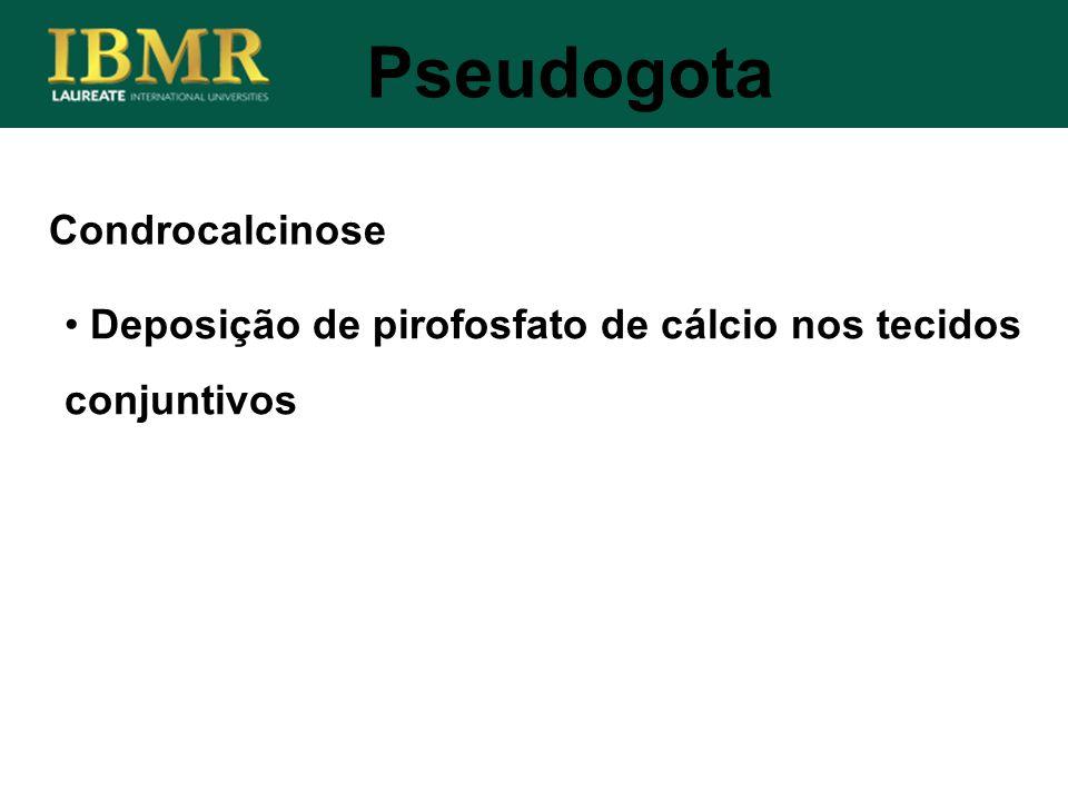 Condrocalcinose Deposição de pirofosfato de cálcio nos tecidos conjuntivos Pseudogota