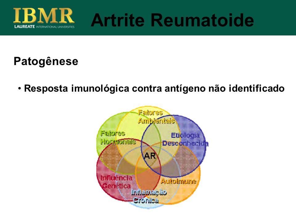 Patogênese Resposta imunológica contra antígeno não identificado Artrite Reumatoide