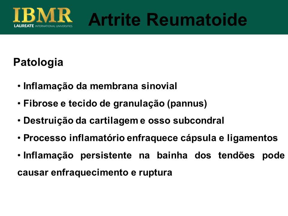 Patologia Inflamação da membrana sinovial Fibrose e tecido de granulação (pannus) Destruição da cartilagem e osso subcondral Processo inflamatório enf