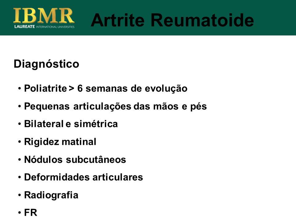 Diagnóstico Poliatrite > 6 semanas de evolução Pequenas articulações das mãos e pés Bilateral e simétrica Rigidez matinal Nódulos subcutâneos Deformid