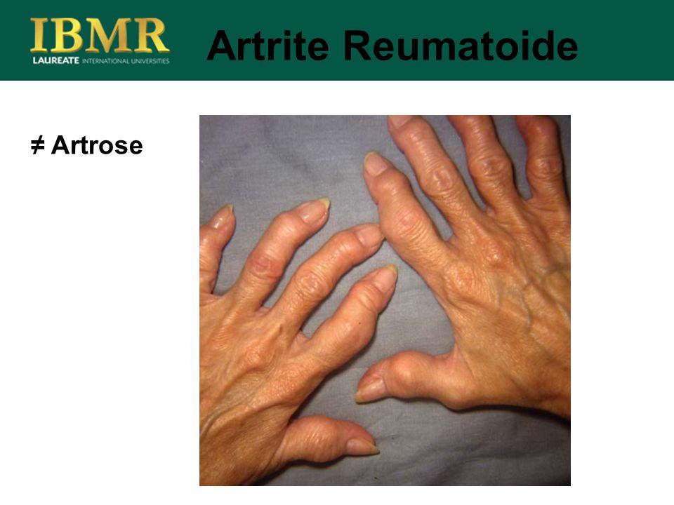 Artrose Artrite Reumatoide