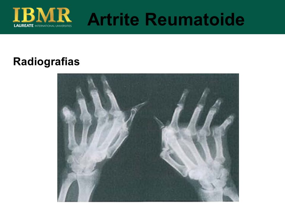 Radiografias Artrite Reumatoide