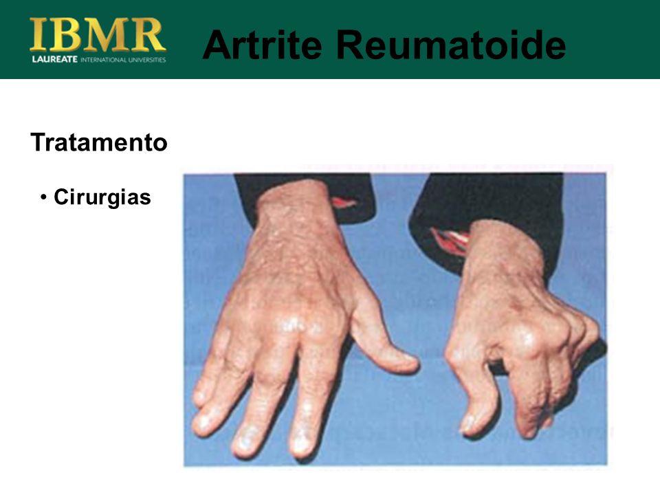 Tratamento Cirurgias Artrite Reumatoide
