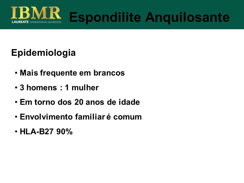 Epidemiologia Mais frequente em brancos 3 homens : 1 mulher Em torno dos 20 anos de idade Envolvimento familiar é comum HLA-B27 90% Espondilite Anquil