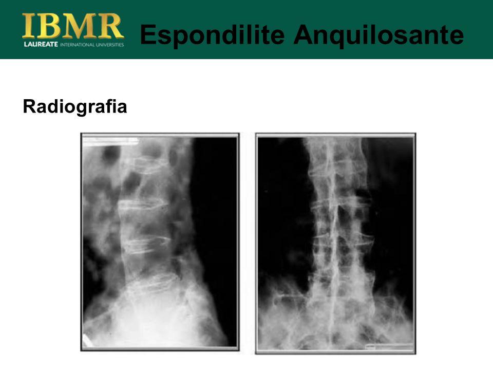 Radiografia Espondilite Anquilosante