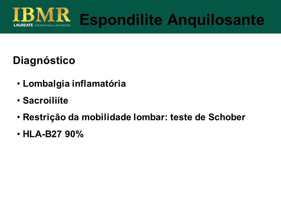 Diagnóstico Lombalgia inflamatória Sacroiliíte Restrição da mobilidade lombar: teste de Schober HLA-B27 90% Espondilite Anquilosante