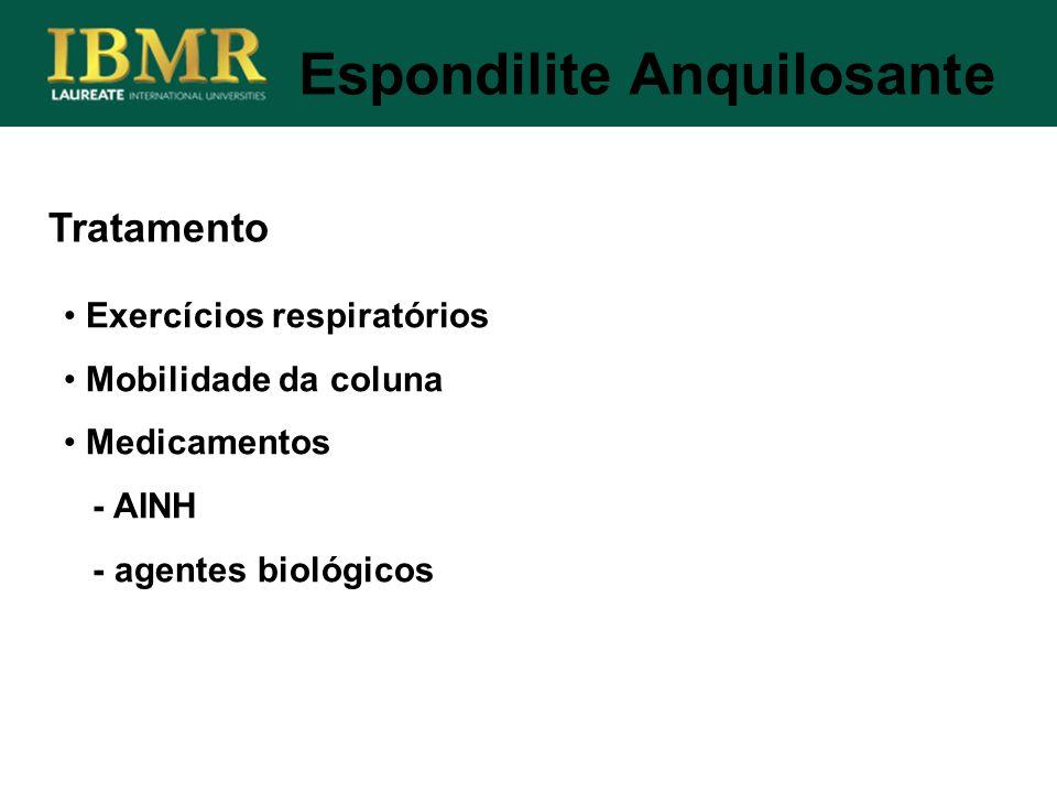 Tratamento Exercícios respiratórios Mobilidade da coluna Medicamentos - AINH - agentes biológicos Espondilite Anquilosante