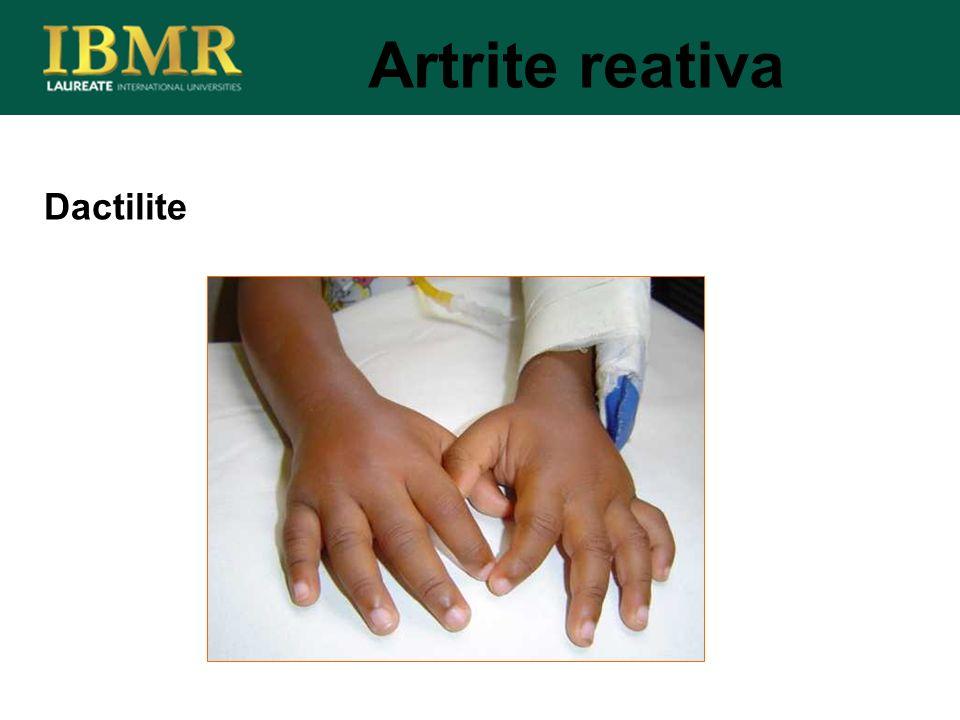 Dactilite Artrite reativa