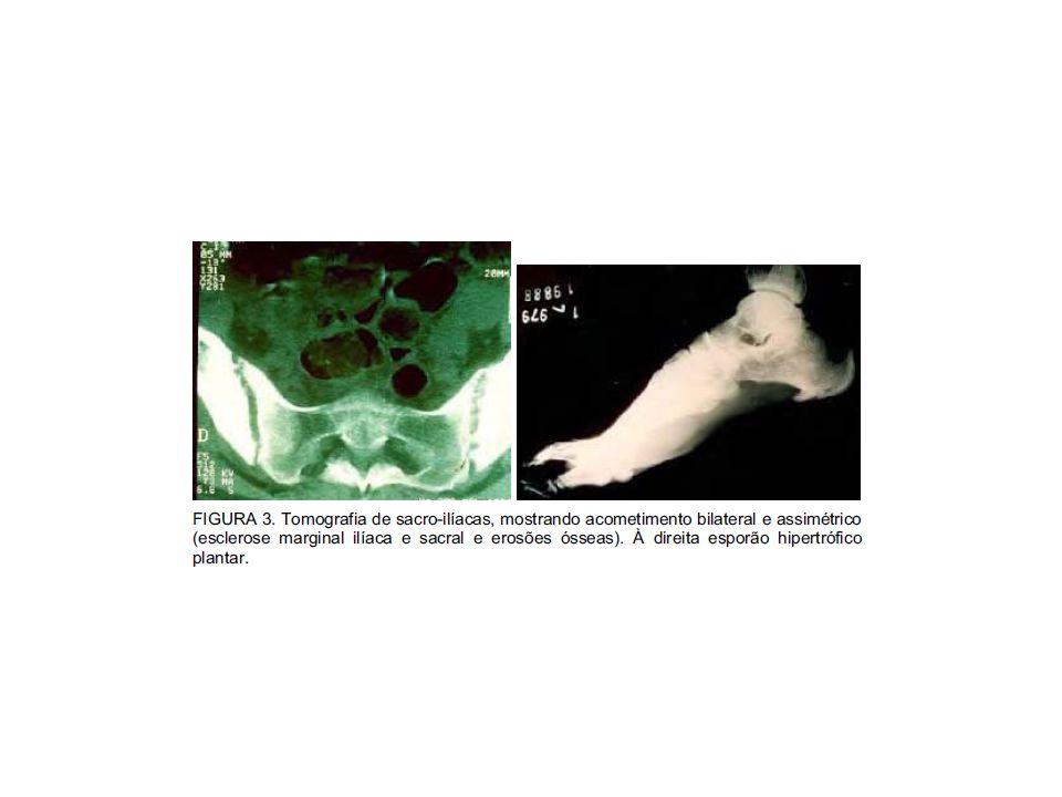 Tratamento Antibioticoterapia AINH Imunomoduladores (casos crônicos) Artrite reativa