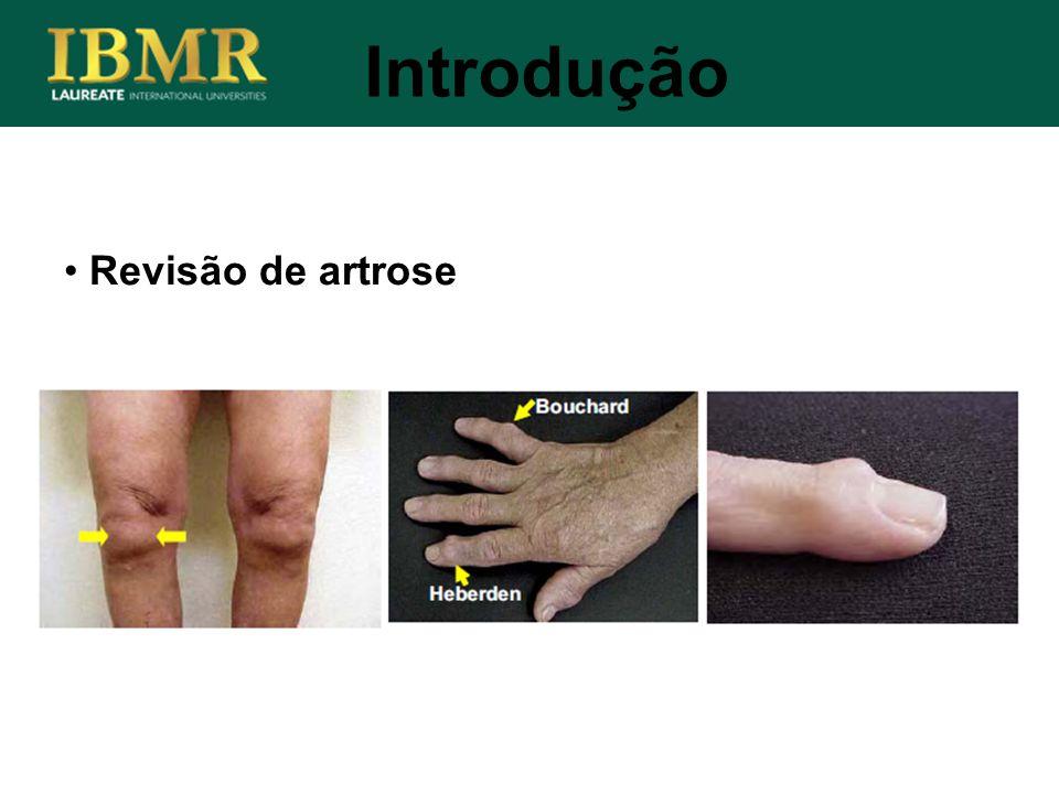 Introdução Revisão de artrose