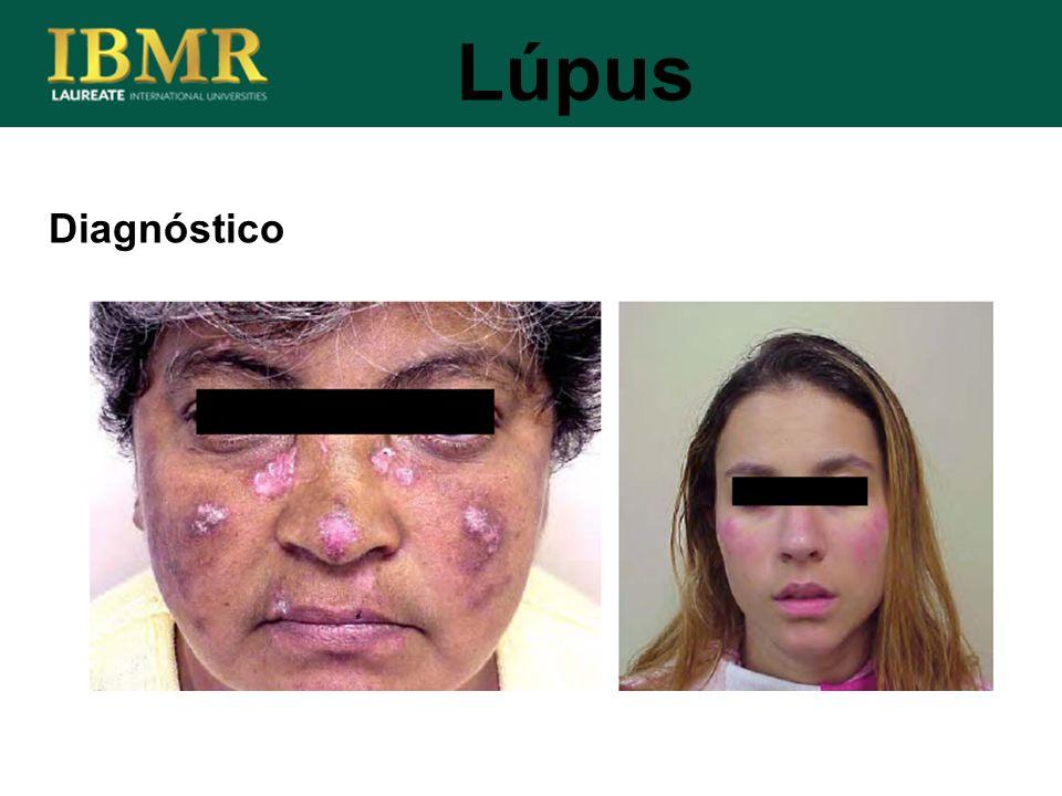 Diagnóstico Lúpus