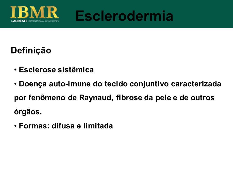 Definição Esclerose sistêmica Doença auto-imune do tecido conjuntivo caracterizada por fenômeno de Raynaud, fibrose da pele e de outros órgãos. Formas