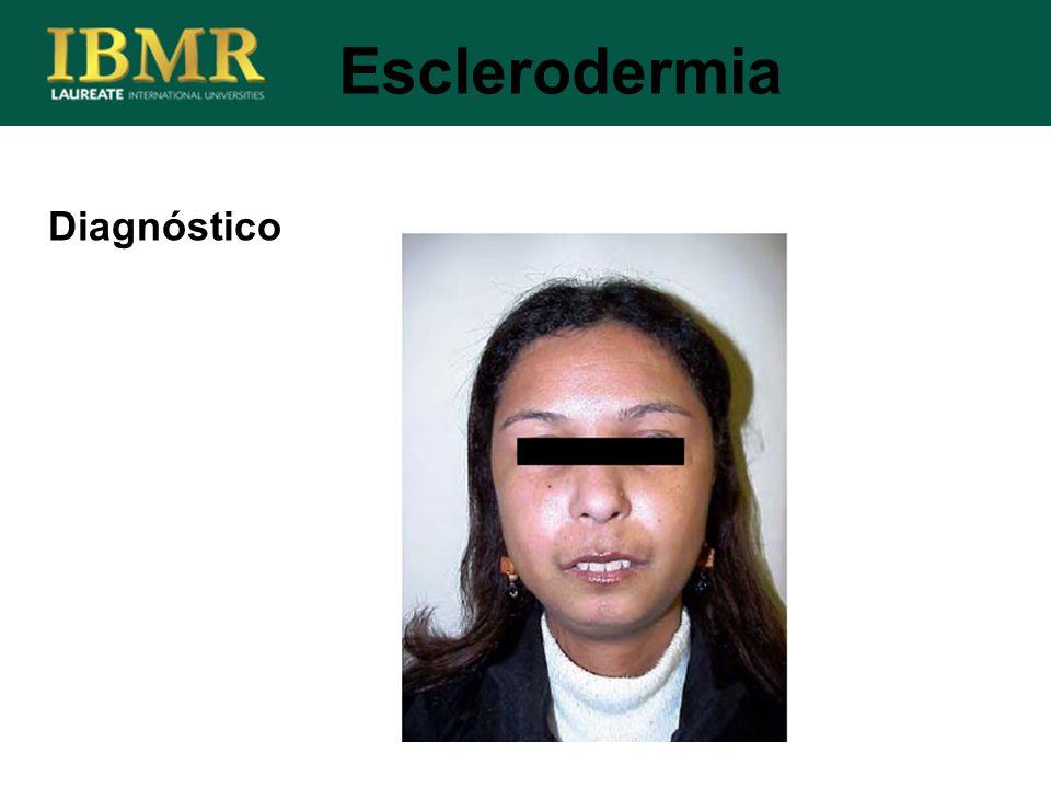 Diagnóstico Esclerodermia