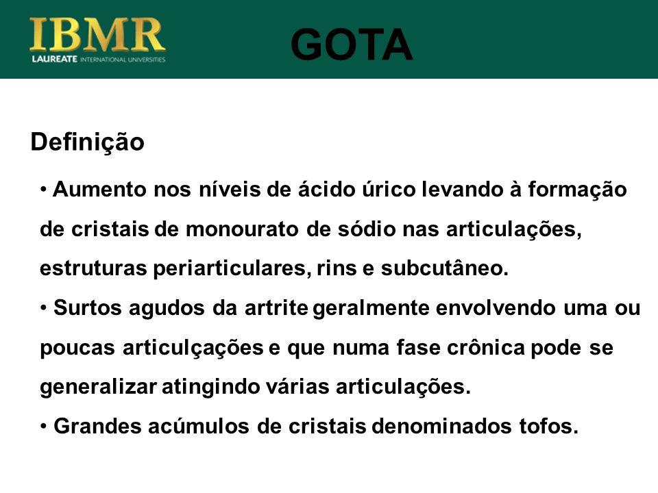 Definição GOTA Aumento nos níveis de ácido úrico levando à formação de cristais de monourato de sódio nas articulações, estruturas periarticulares, ri