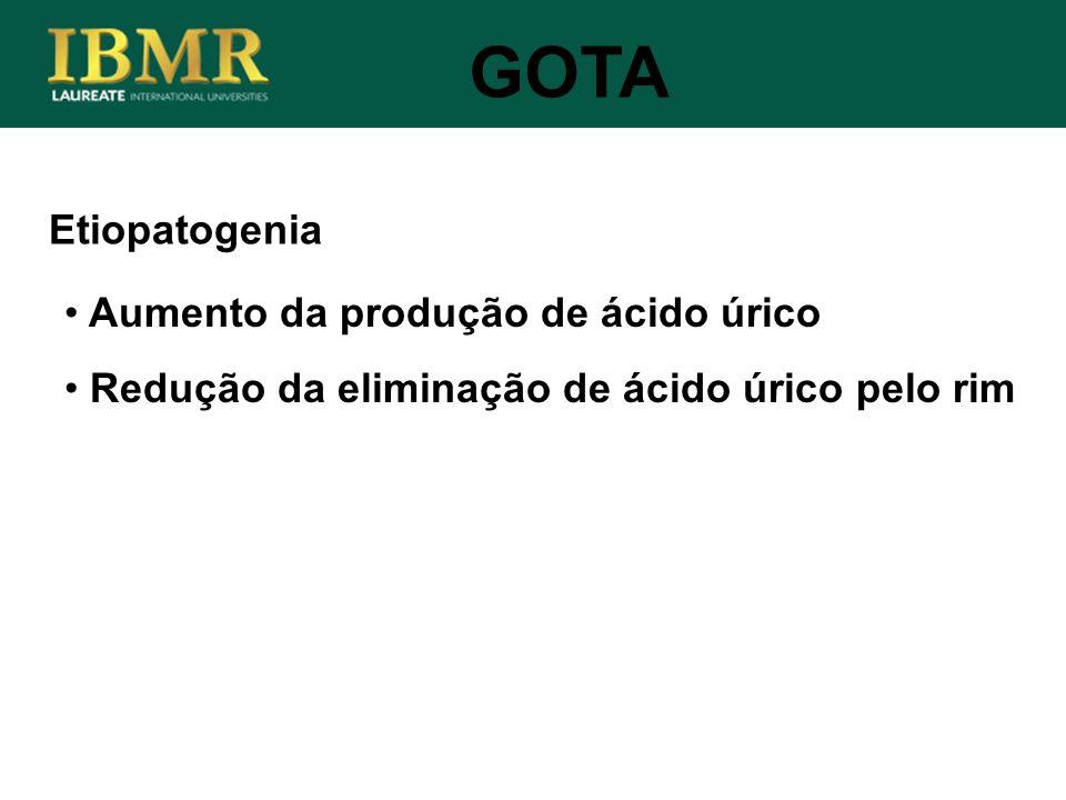 Etiopatogenia GOTA Aumento da produção de ácido úrico Redução da eliminação de ácido úrico pelo rim