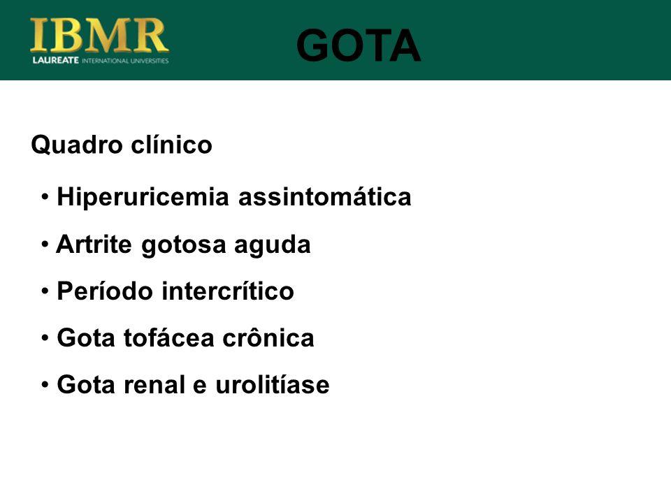 Quadro clínico GOTA Hiperuricemia assintomática Artrite gotosa aguda Período intercrítico Gota tofácea crônica Gota renal e urolitíase
