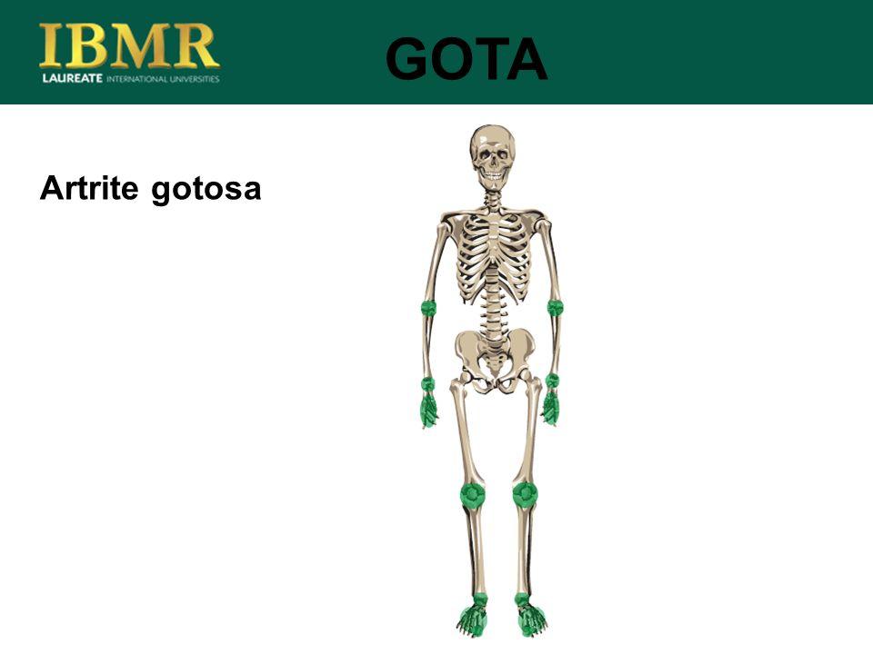 Artrite gotosa GOTA