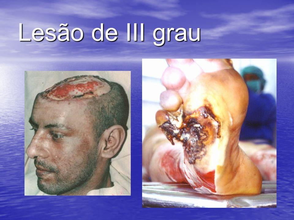 Lesão de III grau