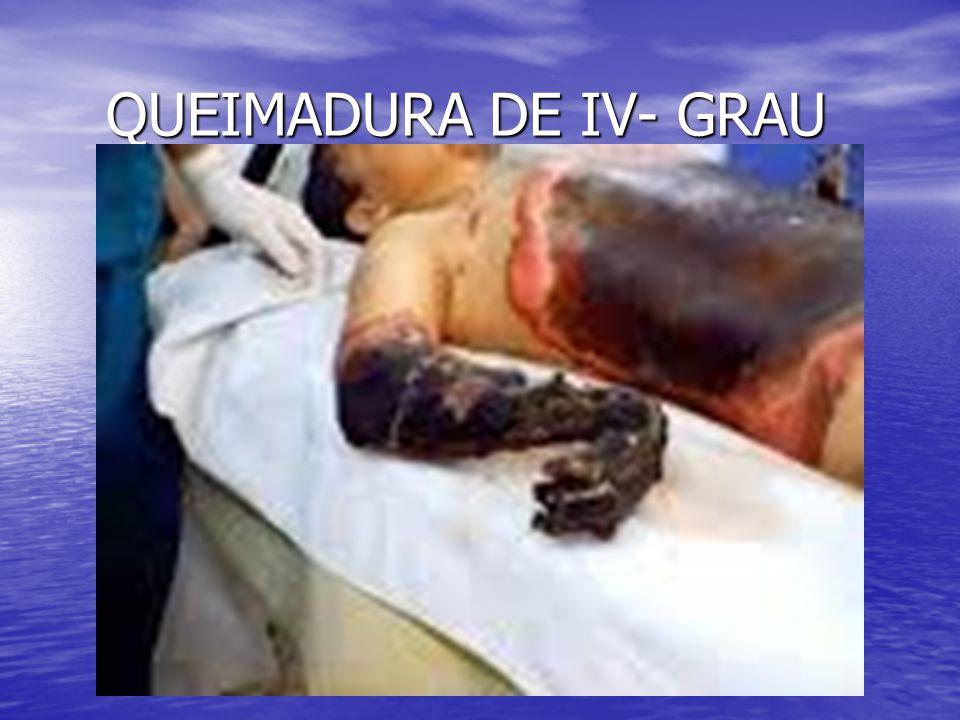 QUEIMADURA DE IV- GRAU
