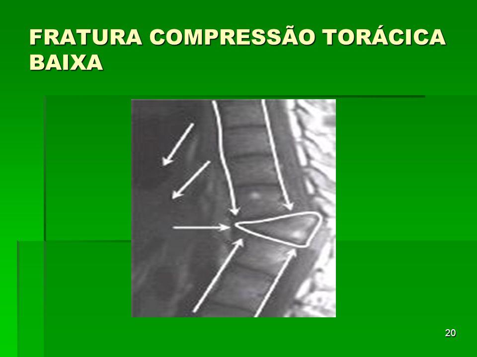 20 FRATURA COMPRESSÃO TORÁCICA BAIXA