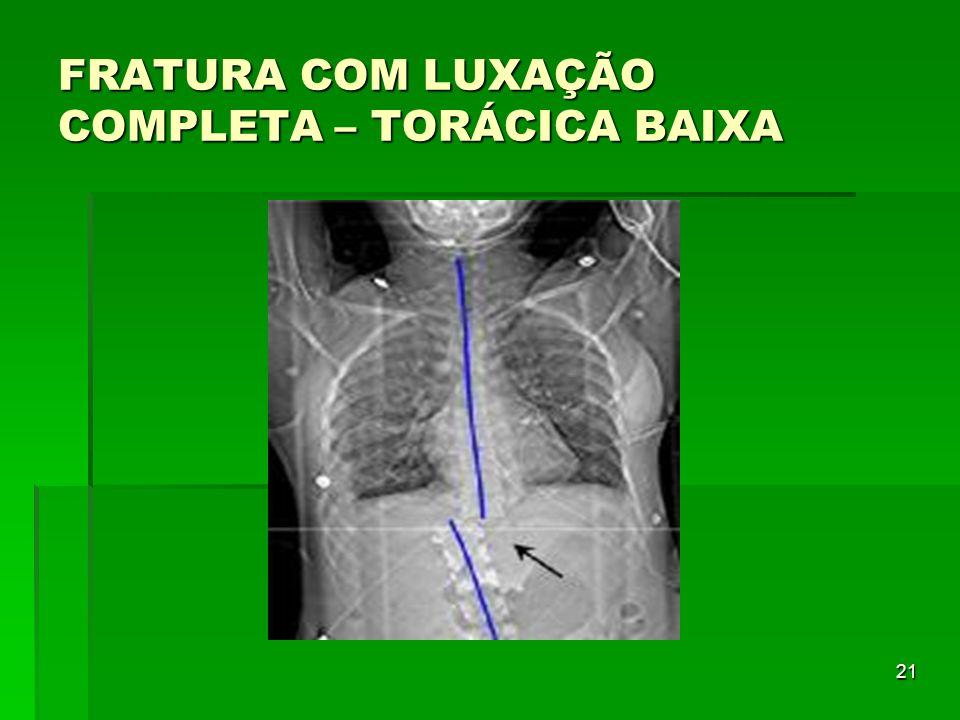 21 FRATURA COM LUXAÇÃO COMPLETA – TORÁCICA BAIXA
