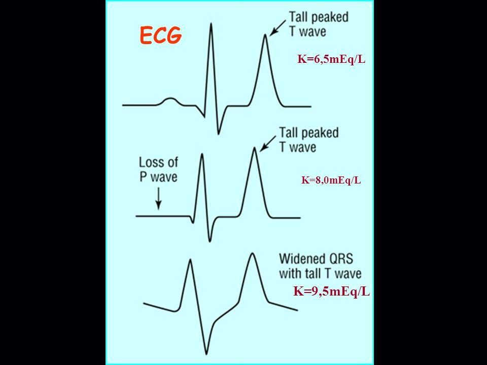 K=6,5mEq/L K=8,0mEq/L K=9,5mEq/L ECG