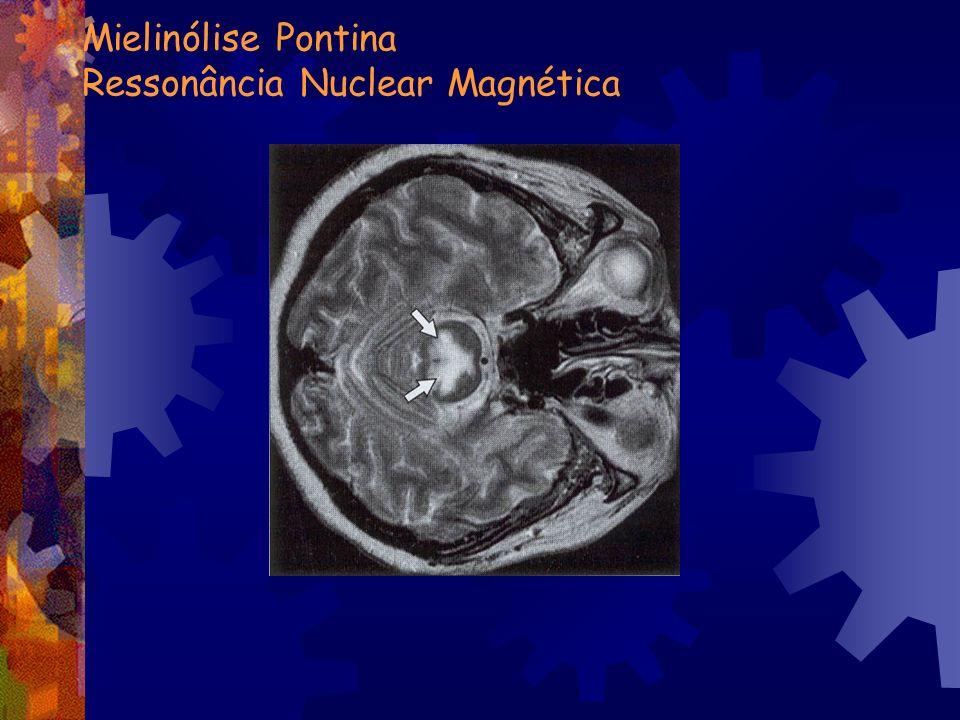 Mielinólise Pontina Ressonância Nuclear Magnética