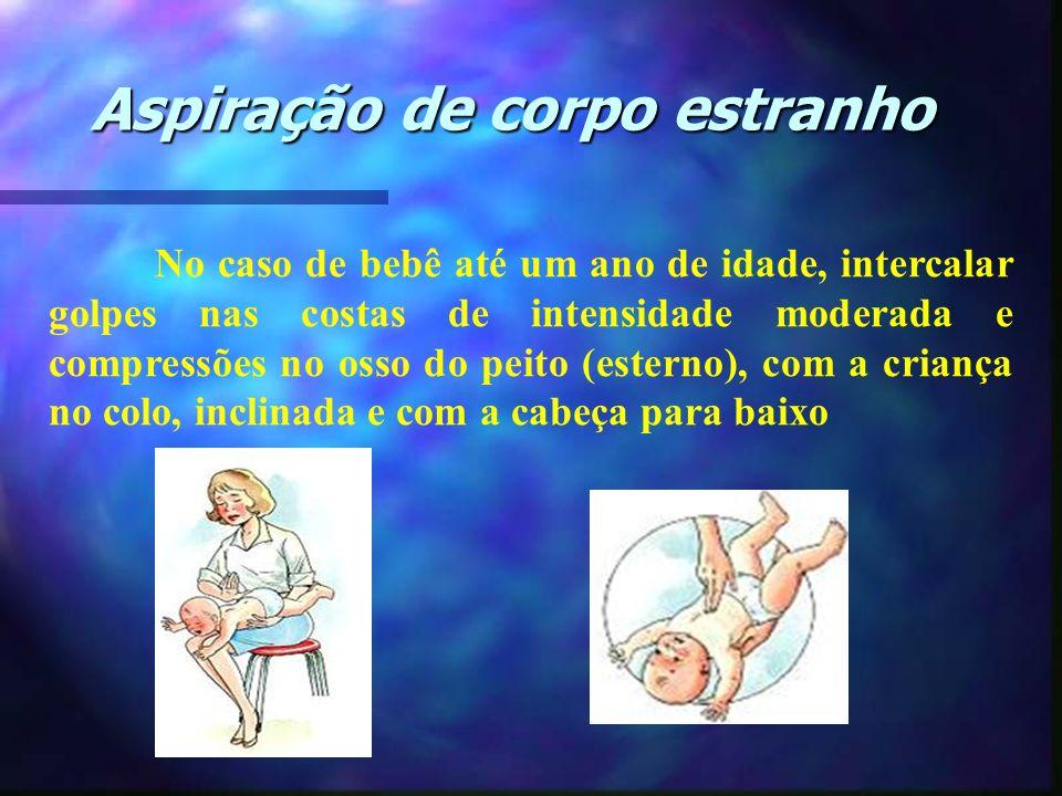 Aspiração de corpo estranho No caso de bebê até um ano de idade, intercalar golpes nas costas de intensidade moderada e compressões no osso do peito (