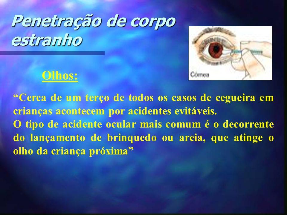 Olhos: Cerca de um terço de todos os casos de cegueira em crianças acontecem por acidentes evitáveis. O tipo de acidente ocular mais comum é o decorre