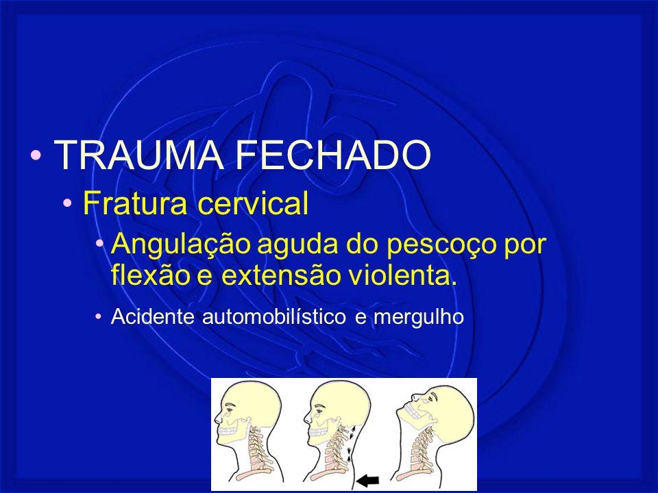 TRAUMA FECHADO Fratura cervical Angulação aguda do pescoço por flexão e extensão violenta. Acidente automobilístico e mergulho