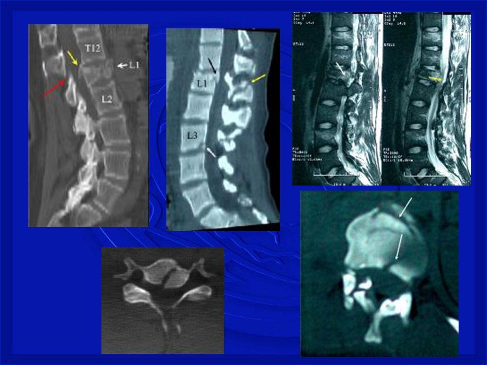 Perfuração da coluna (arma branca, tiro ou estilhaço de bomba na coluna) Lesão medular completa ou incompleta, associada ou não a lesão dos nervos espinhais e/ou tronco dos plexos nervosos.