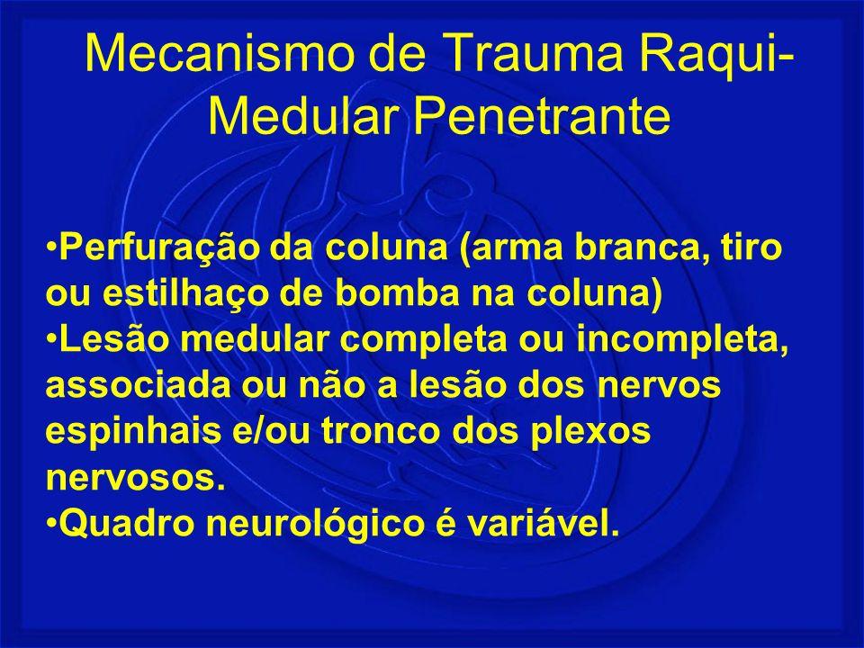 Perfuração da coluna (arma branca, tiro ou estilhaço de bomba na coluna) Lesão medular completa ou incompleta, associada ou não a lesão dos nervos esp