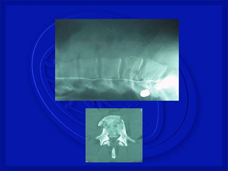 SUSPEITAR DE TRM NOS SEGUINTES CASOS: · Mecanismo de lesão sugestivo (causas de TRM), mesmo sem sintomas.