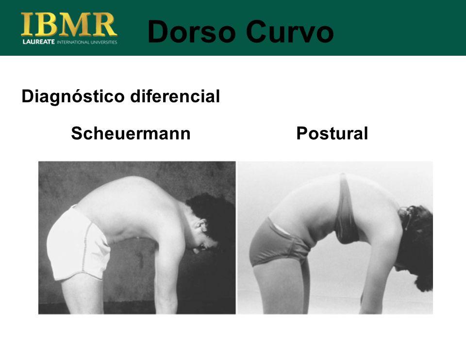 Diagnóstico diferencial Dorso Curvo Scheuermann Postural