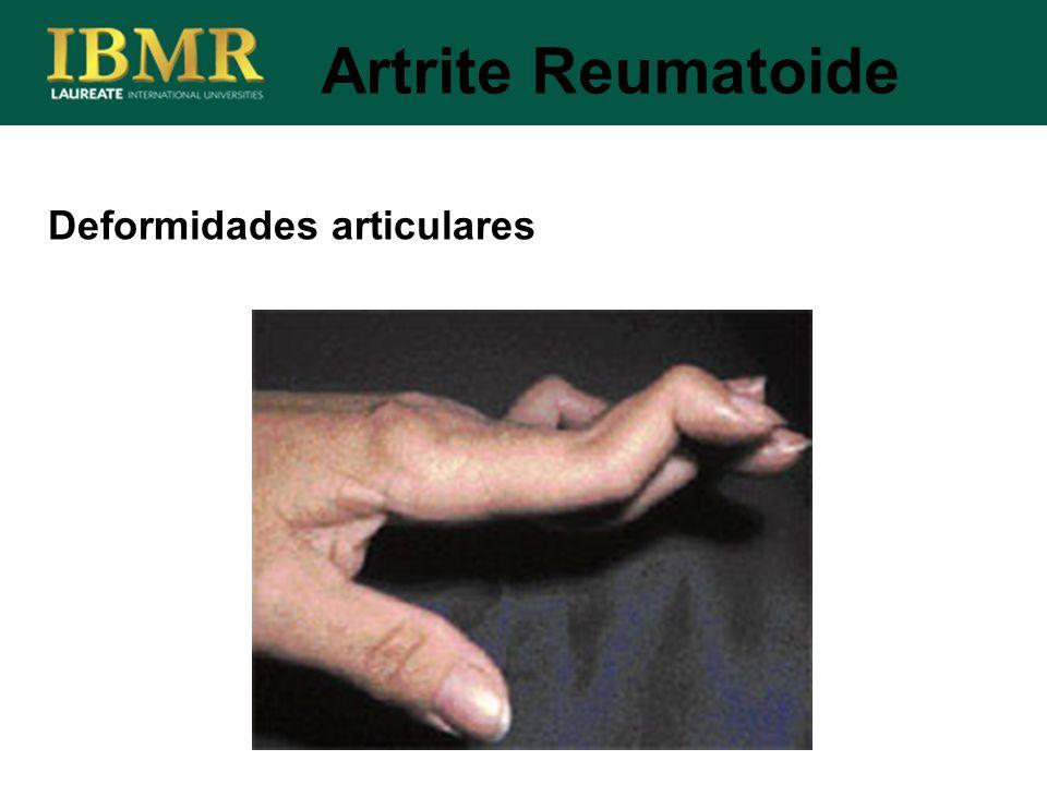 Deformidades articulares Artrite Reumatoide