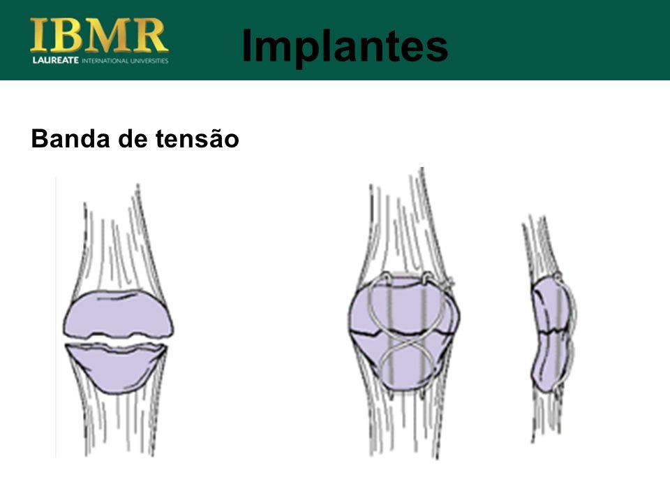 Implantes Banda de tensão