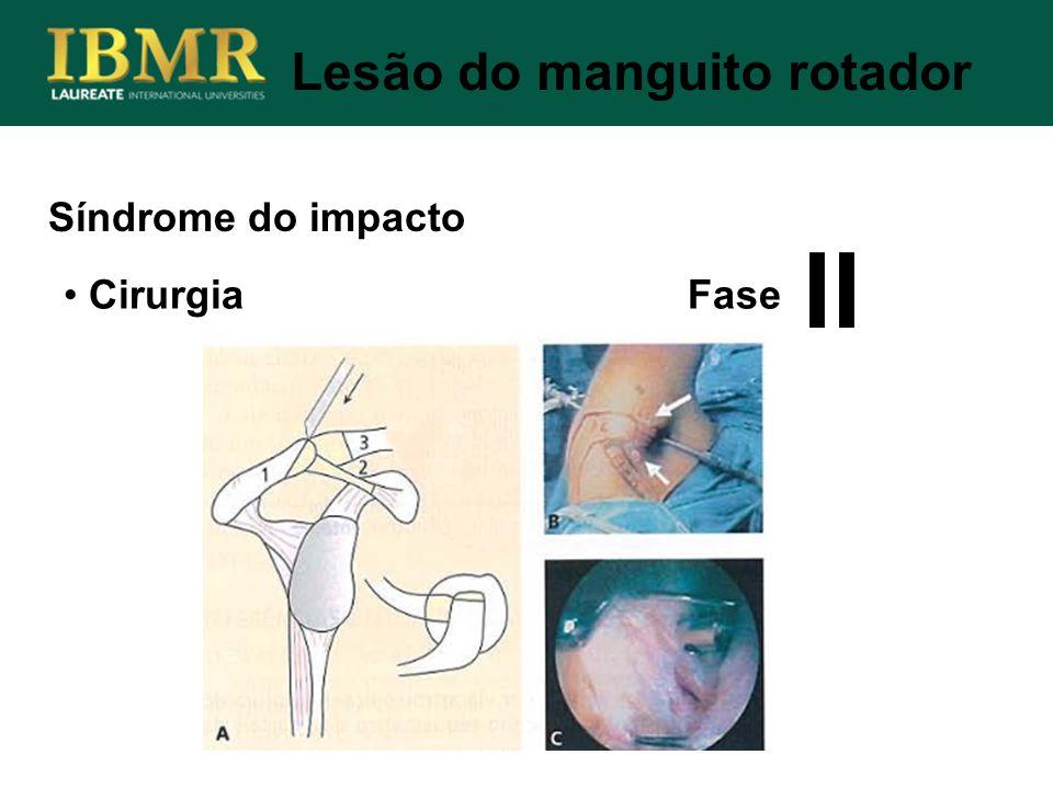 Síndrome do impacto Lesão do manguito rotador Cirurgia Fase II