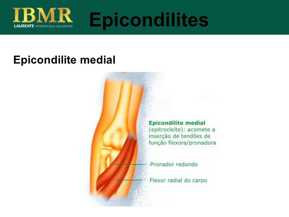 Epicondilite medial Epicondilites